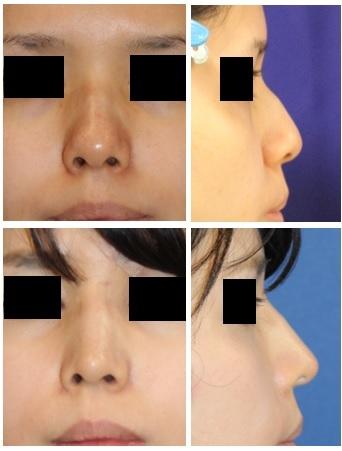 他院鼻尖縮小術 術後 再手術(鼻尖縮小術) + 鼻尖部軟骨移植 + 婦人科軟部組織移植術_d0092965_02224887.jpg