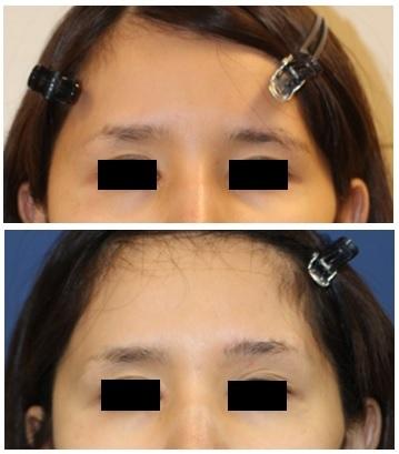 左眉上挙上 : エンドタイン眉リフト および 眉上切開_d0092965_02394532.jpg