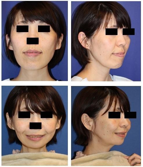 中顔面短縮術(Le Fort一型骨切術+SSRO)、下顎下縁骨切術(スティック骨切術)、鼻翼基部アパタイト形成術、埋伏親知らず2本抜歯_d0092965_03133674.jpg