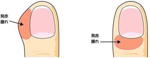 爪周囲炎 症状_a0296269_08433333.jpg