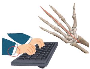 手首 痛い 🤝腕立て伏せ 手首が痛い!その痛みの原因はこの4つのうちどれですか?