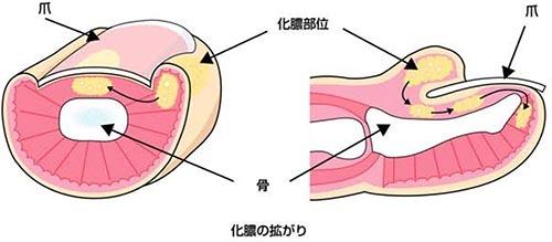 爪周囲炎 原因・病態_a0296269_11113342.jpg