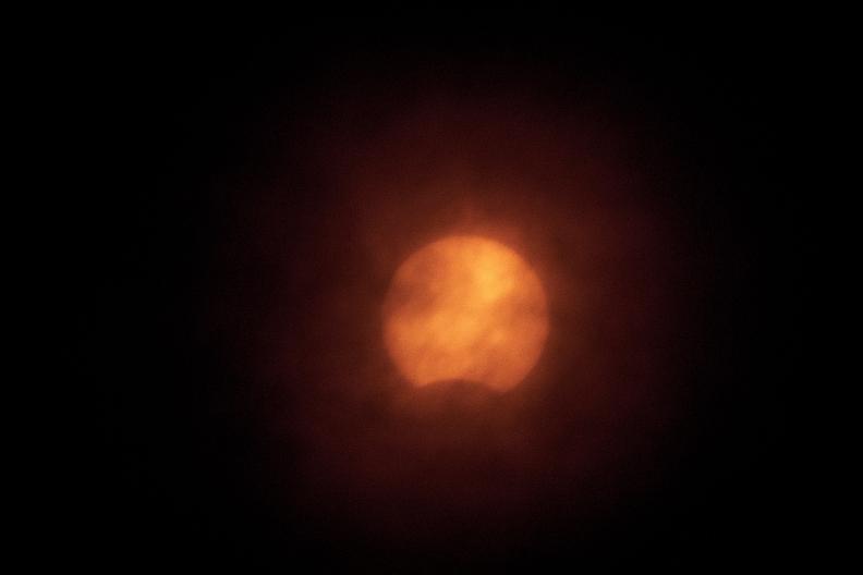 夏至と日食_f0189086_19235347.jpg