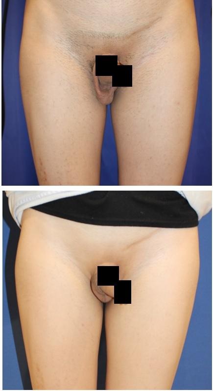 メディオスター陰部脱毛(VIO脱毛)3回照射後 + 睾丸摘出術術後半年再診時_d0092965_03053741.jpg