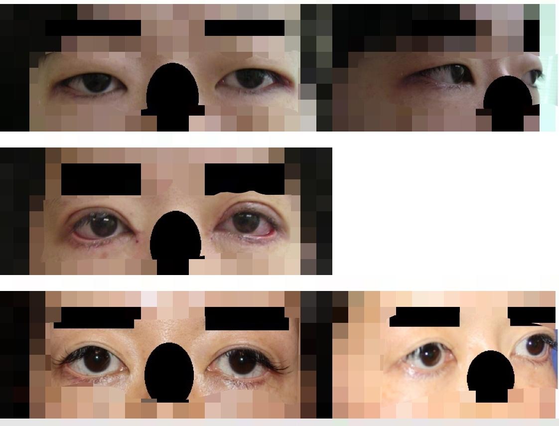 目尻切開,眼瞼下垂修正術,目頭切開術,たれ目形成術,眼瞼脂肪脱脂術  術後約13年_d0092965_02134651.jpeg