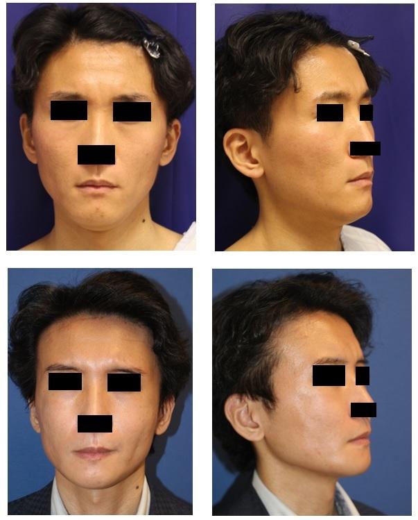 頬骨V字骨切術、頬骨基部削り、顎先骨切術_d0092965_03511001.jpg