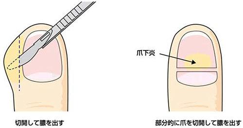爪周囲炎 治療_a0296269_08323169.jpg