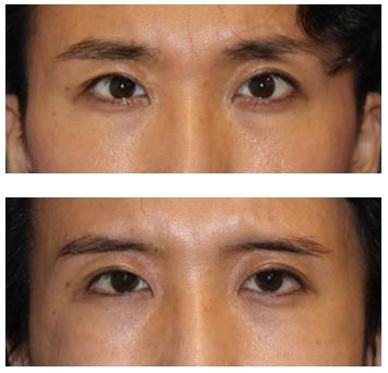 両目目尻切開術 術後約半年_d0092965_00385603.jpg