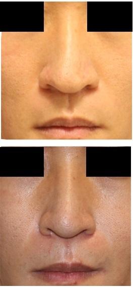 鼻尖縮小クローズ法 + 小鼻縮小    _d0092965_01081135.jpg