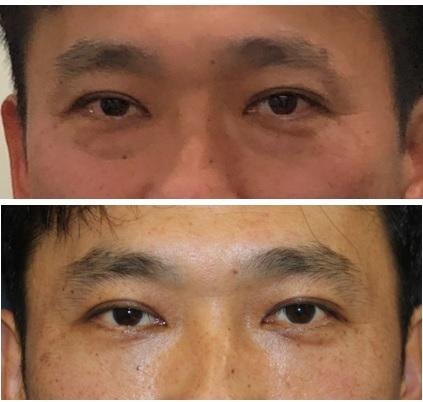 同級生の目の下のくま改善治療 (眼窩脂肪摘出術+下瞼脂肪移植術)_d0092965_02303928.jpg