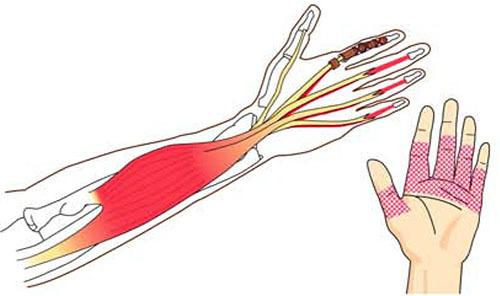 屈筋腱損傷 症状_a0296269_08411035.jpg