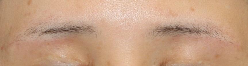 左眼:挙筋短縮術 術後約10年 , 両眉下切開 術後半年再診時_d0092965_05490635.jpg