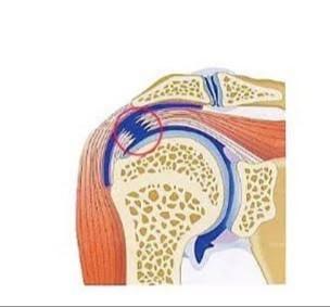 五十肩/腱板損傷|整形外科の主たる疾患_b0329026_17364343.jpg