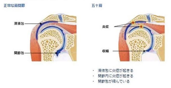 五十肩/腱板損傷|整形外科の主たる疾患_b0329026_17364386.jpg