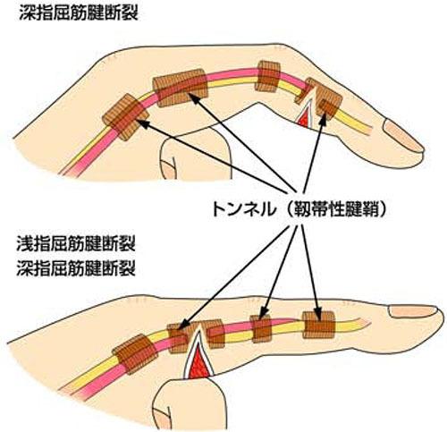 屈筋腱損傷 原因・病態_a0296269_08401405.jpg