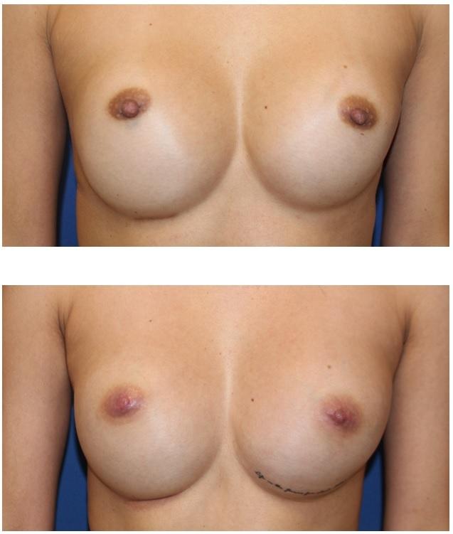 他院術後乳頭縮小術、 乳頭乳輪脱色術  術後約半年再診時_d0092965_04401761.jpg