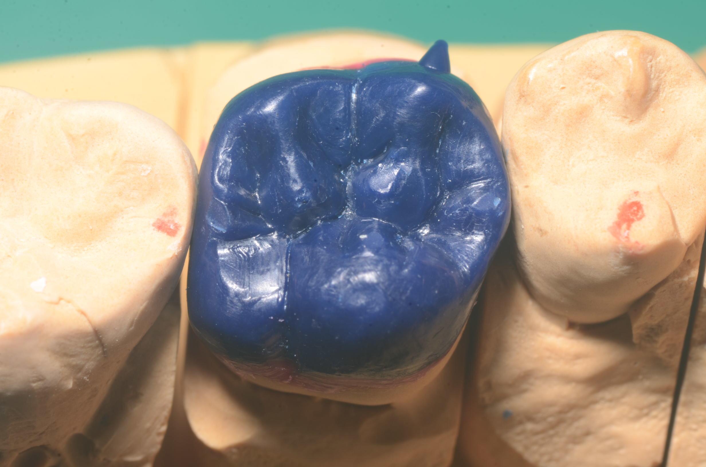 黒田歯科の咬合面を研究する_b0112648_13210585.jpg