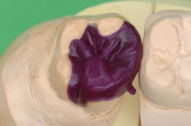 黒田歯科の咬合面を研究する_b0112648_13214748.jpg