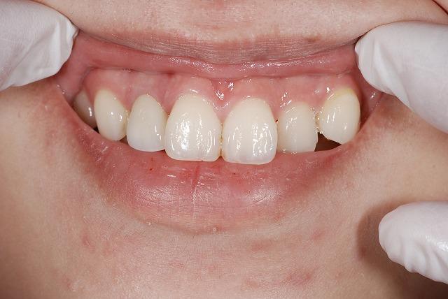 歯科技工 一般の方にはわかりづらいとは思いますが_a0071724_17594138.jpg