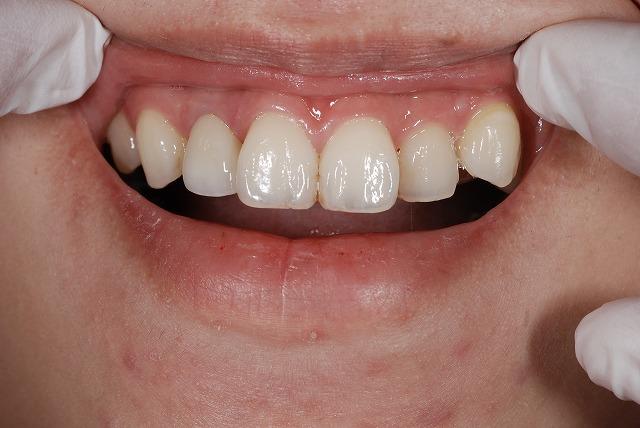 歯科技工 一般の方にはわかりづらいとは思いますが_a0071724_17594509.jpg