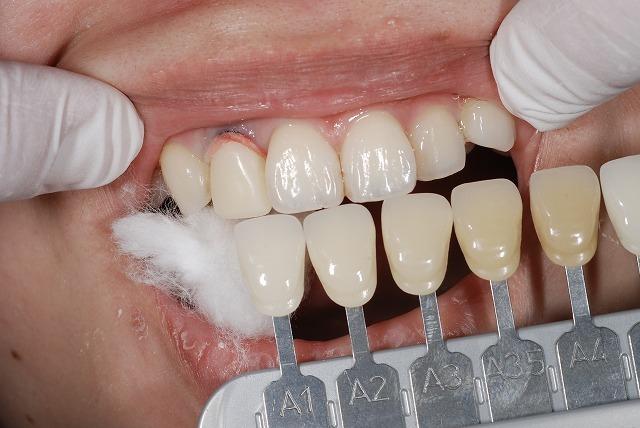 歯科技工 一般の方にはわかりづらいとは思いますが_a0071724_18000375.jpg