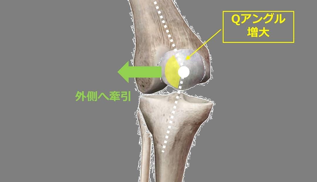 Knee-in&Toe-out(KITO)により生じる膝関節へのメカニカルストレスとスポーツ外傷・障害_b0329026_22393142.jpg