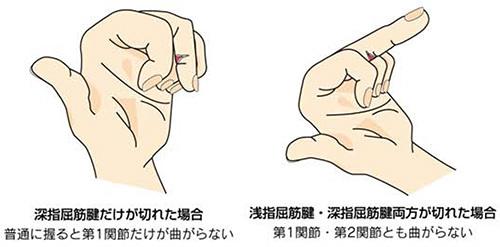 屈筋腱損傷 診断_a0296269_08371347.jpg