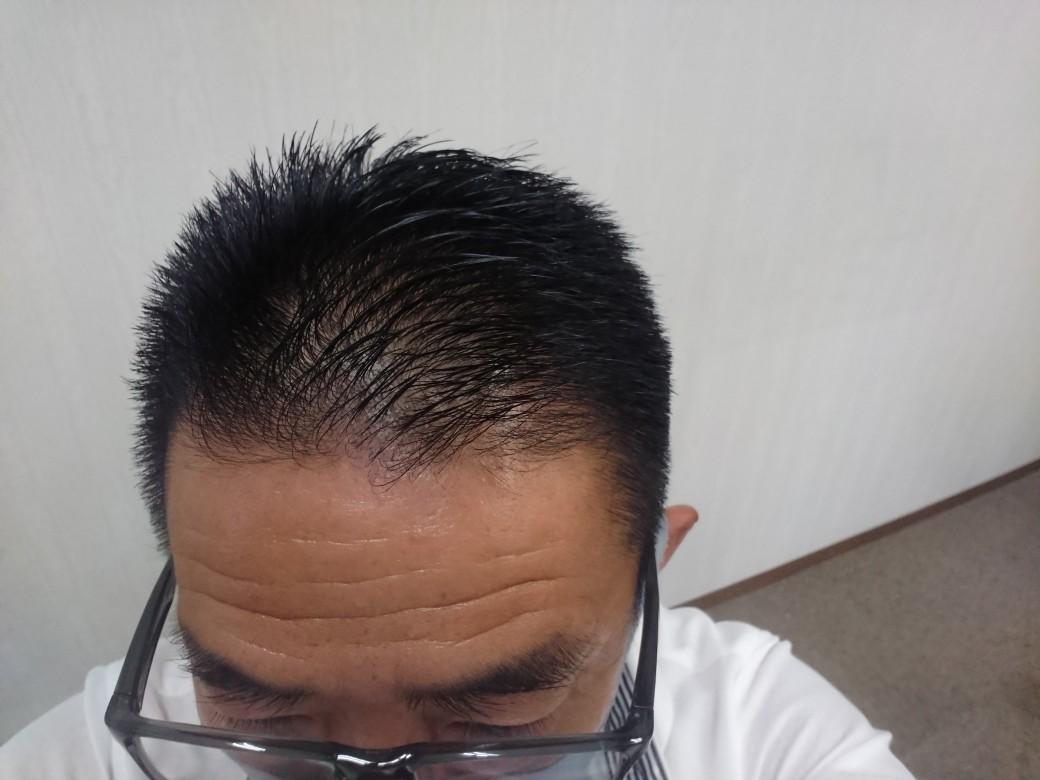 8/7 総合児童施設進捗状況_e0185893_07173623.jpg