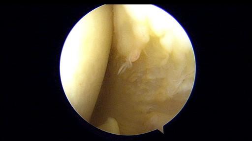 肩関節唇手術後の記録④ 術後1ヶ月_c0206900_18460712.jpg