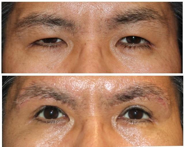 眼瞼下垂修正術、目じり切開、目頭切開、エンドタイン眉リフト、眉下切開、ROOF切除_d0092965_00563191.jpg