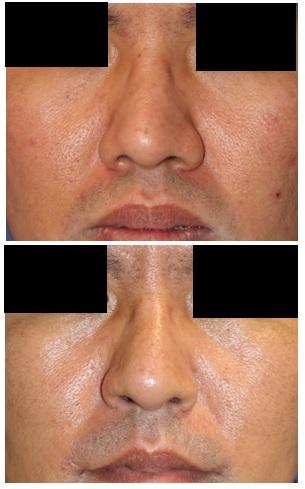 小鼻縮小術、鼻孔縁挙上術 術後約5年再診時_d0092965_01055948.jpg