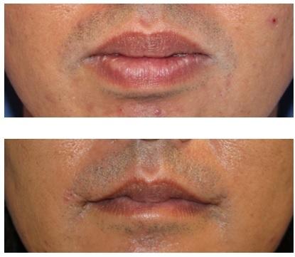 口角挙上(外側法) 、上下口唇縮小術  術後約5年再診時_d0092965_01100997.jpg