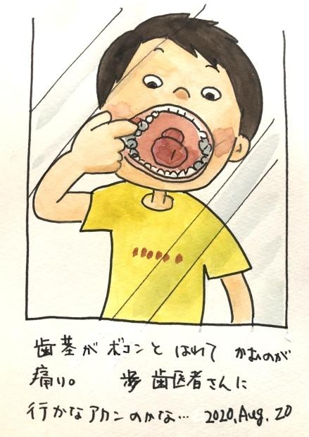 歯茎 痛い_f0072976_12551453.jpeg