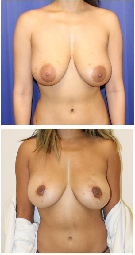 乳輪縮小、乳房吊り上げ  術後約1年再診時_d0092965_03384793.jpg