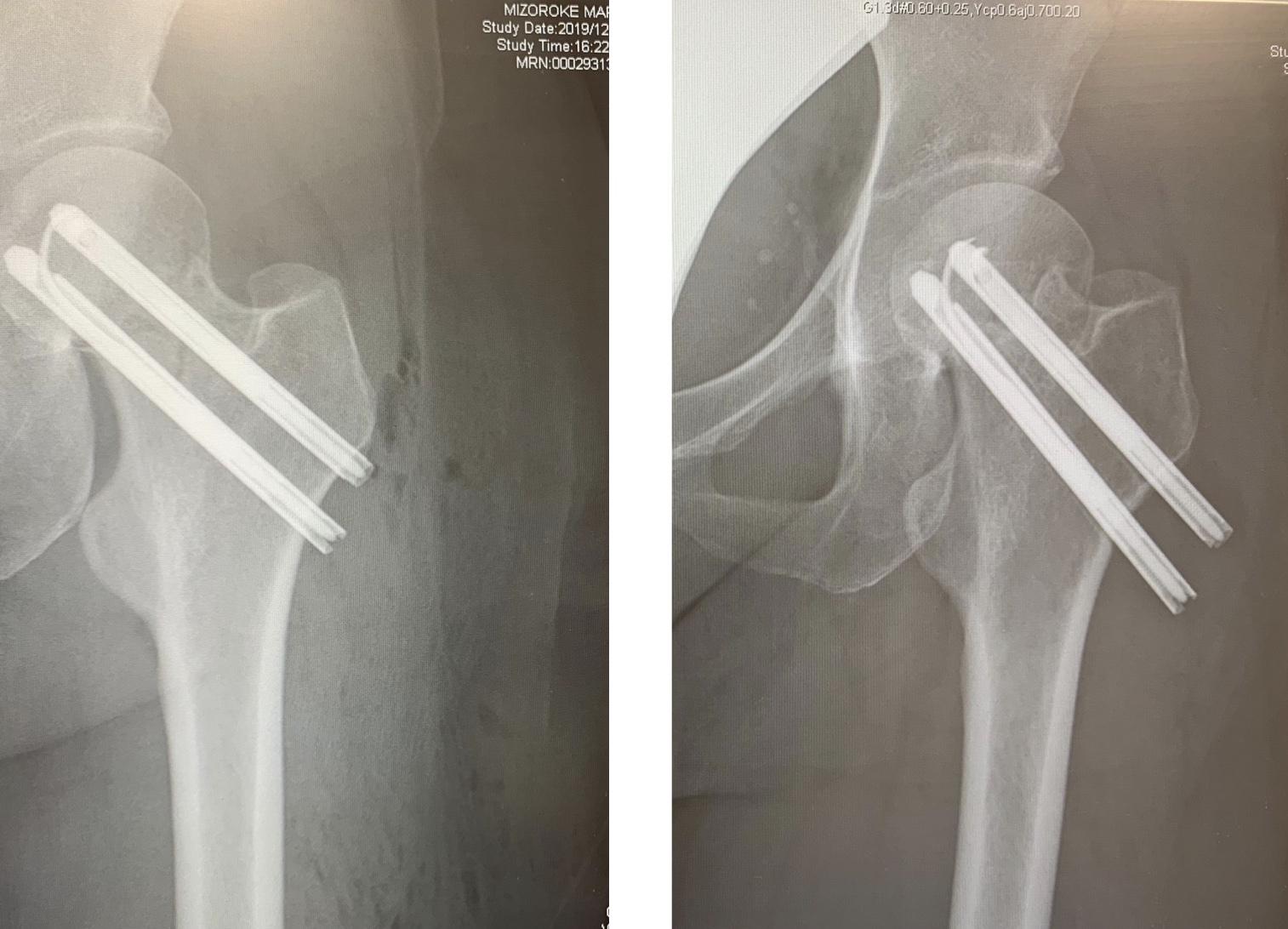 大腿骨の変形。人工関節か?_f0046982_18133384.jpeg
