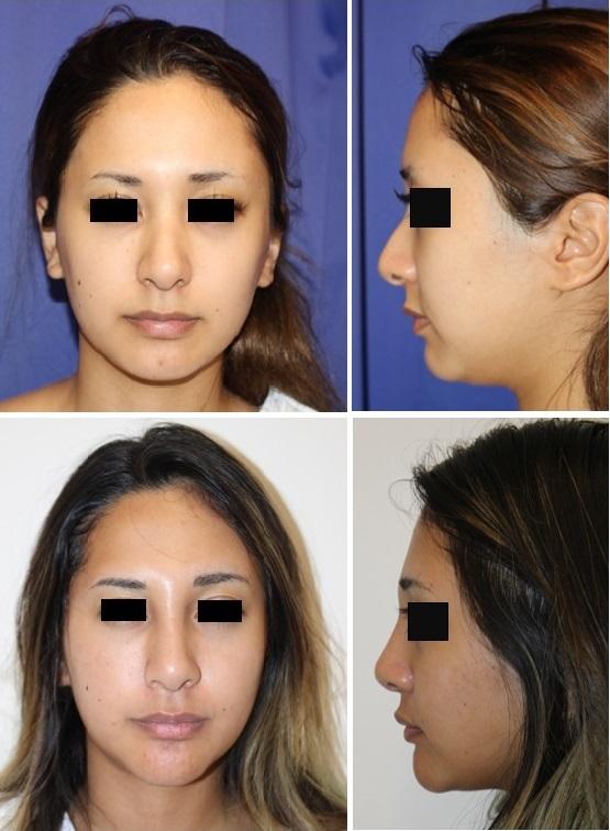 眉間、眉骨アパタイト、鼻根アパタイト、顎先アパタイト、 顎下・頬ベイザー脂肪吸引術後約1年再診時_d0092965_21212572.jpg