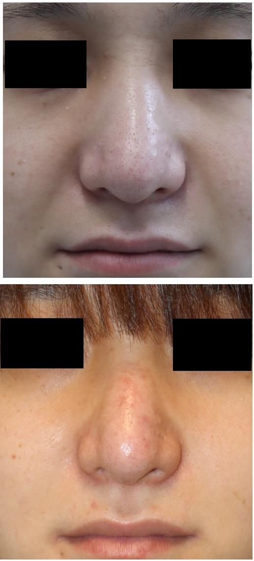 鼻根縮小(鼻骨骨切幅寄せ術)、鼻尖縮小クローズ法術後約半年、 イチゴ鼻治療(6回目施術より術後約2か月)_d0092965_03271925.jpg