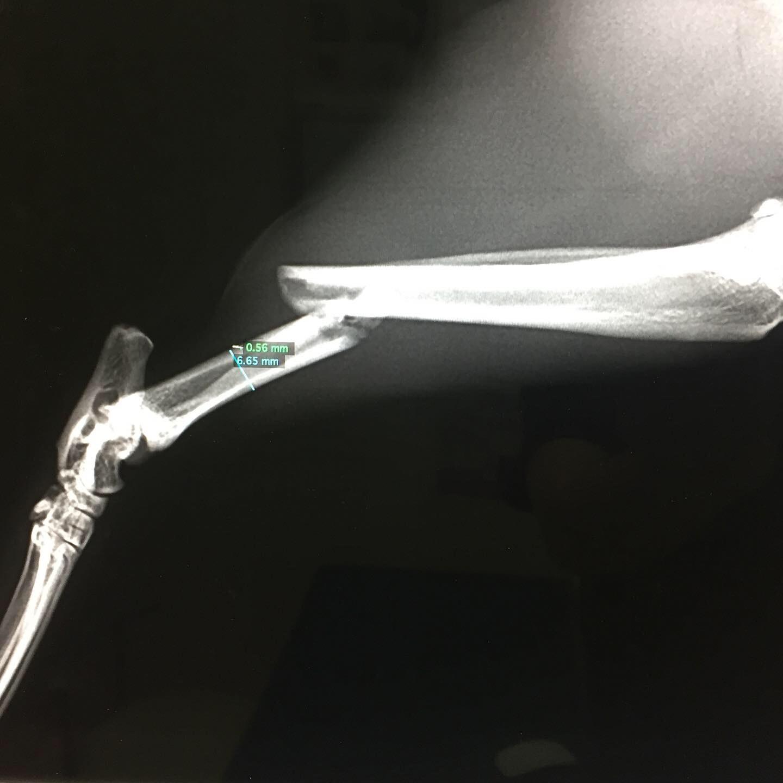 骨折の整復手術 脛骨骨折・腓骨骨折_b0350282_21483263.jpg