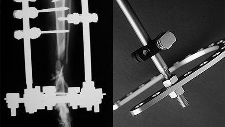 骨折の整復手術 脛骨骨折・腓骨骨折_b0350282_22273282.jpg