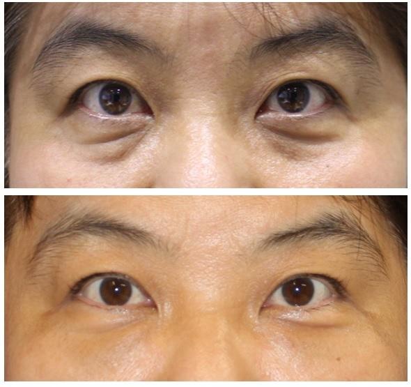 目の下のクマ、たるみ改善 : 目の下の脂肪除去(眼窩脂肪除去) + 目の下の脂肪移植_d0092965_04254792.jpg