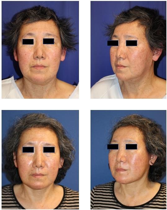 SMASリフト、 顎下ベイザー脂肪吸引+ミントリフト、レインボー(IPL)美肌治療1回照射_d0092965_23424300.jpg
