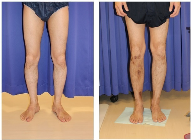 両下腿 5㎝延長完了  ISKD 右下腿延長終了後 抜釘術後半年後再診 _d0092965_19441165.jpg
