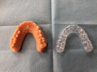 札幌市北区で「口腔内スキャナー」なら北32条歯科クリニック_b0191221_21473767.jpg