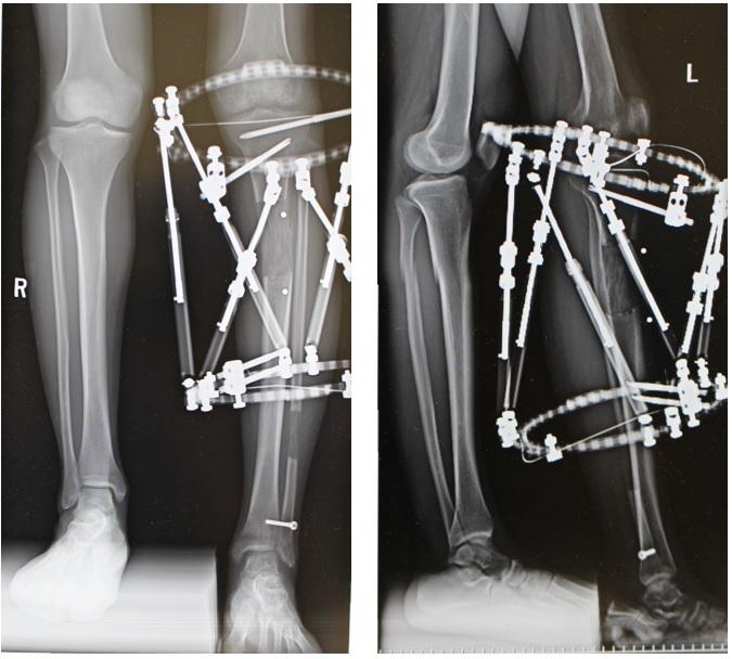 Taylor Spatial Frame (テイラースペシャルフレーム)による脚延長術(6㎝) 術後約7か月_d0092965_01351885.jpg