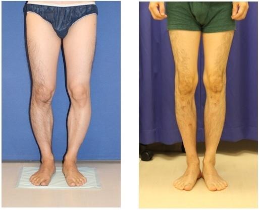 両下腿4.5cm延長完了 precice(プリサイス) 左下腿術後約2年再診時 右下腿術後約1年再診時_d0092965_22572936.jpg