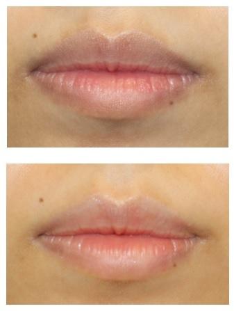 口唇脱色治療 治療開始後約半年再診時_d0092965_02344499.jpg