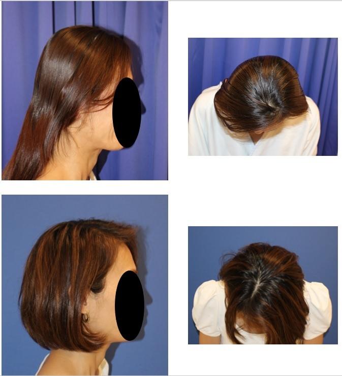 絶壁修正術  :  頭蓋アパタイト形成 術後約半年再診時_d0092965_01411636.jpg