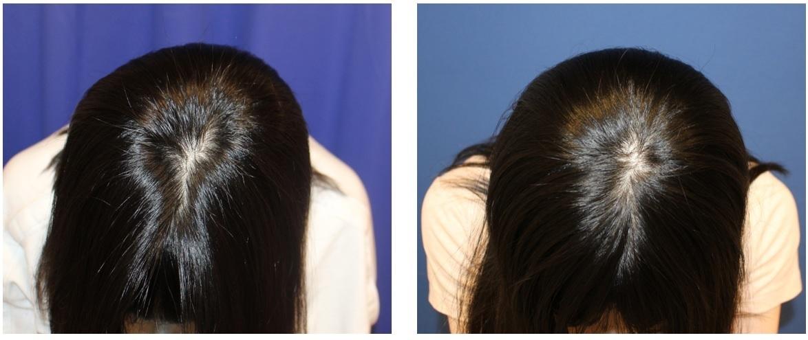 頭蓋削り+後頭部アパタイト  術後約半年再診時_d0092965_00025123.jpg