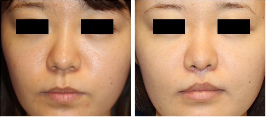 鼻翼基部アパタイト形成術、鼻口唇角形成術、人中短縮術 術後約半年再診時_d0092965_07370975.jpg