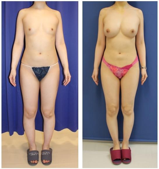脂肪移植豊胸 1クール(1年間に3回の脂肪移植豊胸) 終了後 約5年後再診_d0092965_03034139.jpg